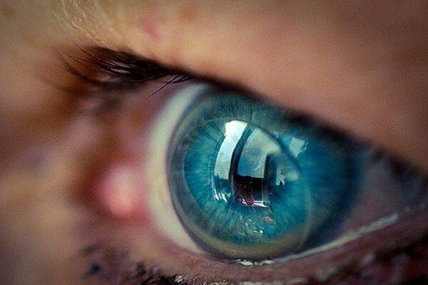 روباتی که با فرمان صوتی لنز را از چشم درمی آورد