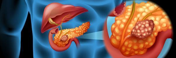 سرطان لوزالمعده چیست؟